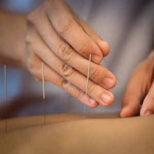TRADITIONAL ACUPUNCTURE & DRY NEEDLING